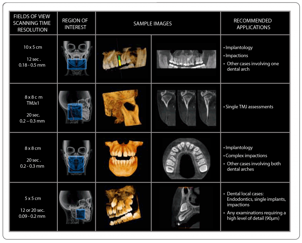 maxillofacial and oral fields of view