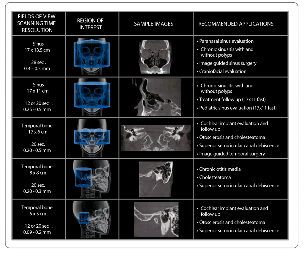 sinus-and-temporal-bone-fields-of-view
