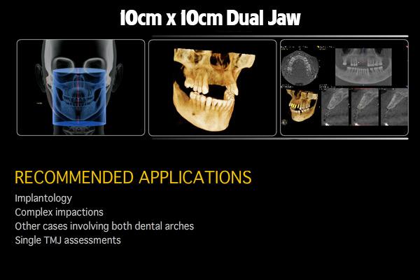10cm-x-10cm-Dual-Jaw