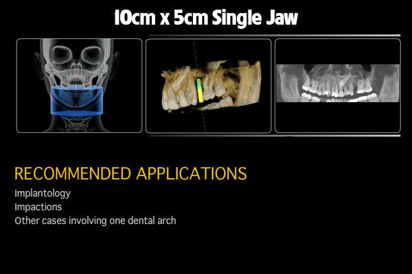 10cm-x-5cm-Single-Jaw