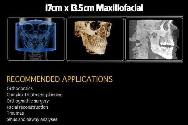 17cm-x-13.5cm-Maxillofacial