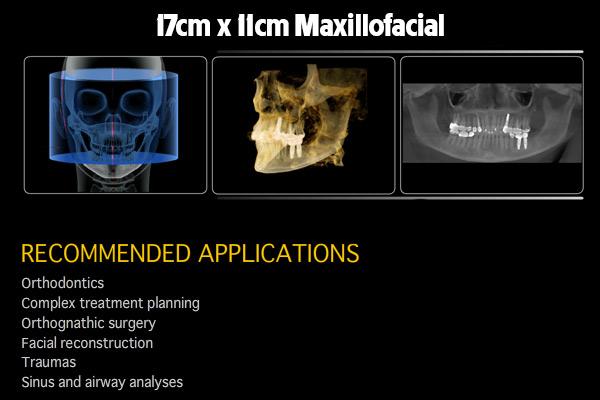 17x11-Maxillofacial