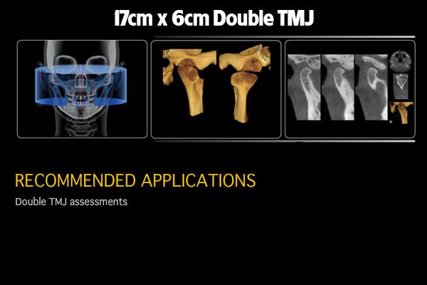 17x6-Double-TMJ