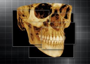 DentalImaging