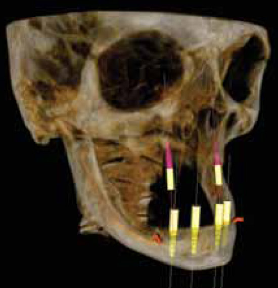 implant-2-3